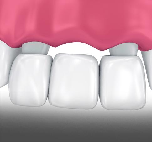 Treatment - Kettering Dental