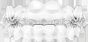 thumb1 teeth straightening