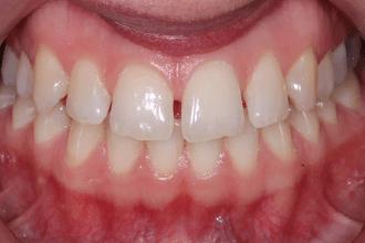 Before - Kettering Dental