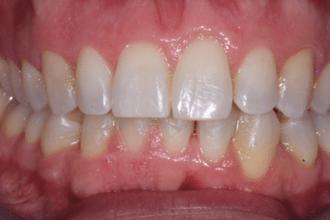 After - Kettering Dental